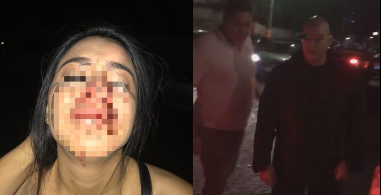 Causa polémica agresión a joven en un bar de Cuernavaca - Diario de Morelos