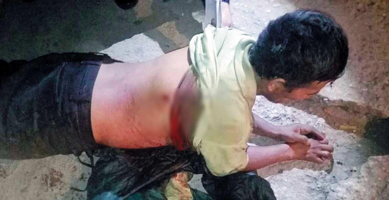 Atención. Damián fue lesionado de dos balazos en la espalda, tras negarse a inflar las llantas de una camioneta en la colonia Cerritos.