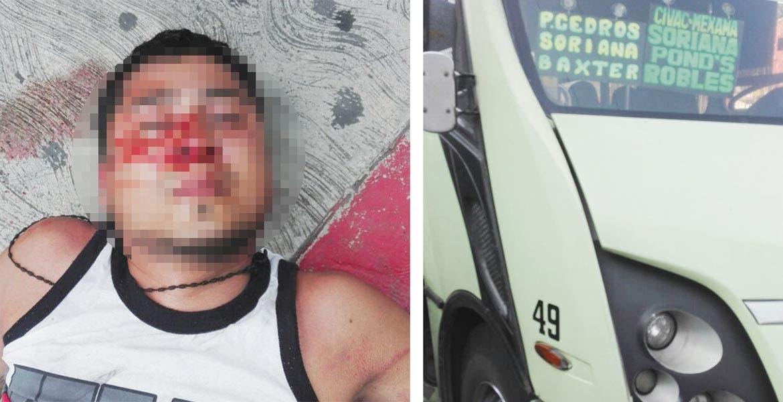 Atención. Néstor quedó inconsciente al ser arrollado por una ruta de los Chapulines, al atravesar corriendo la calle Álvaro Obregón.