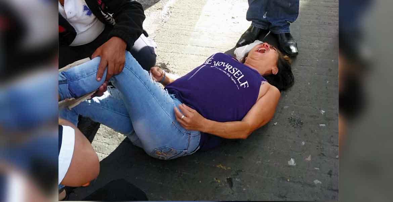 Atención. Una joven resultó con una fractura en la pierna izquierda al ser atropellada por un Sentra, en pleno Centro de Cuernavaca