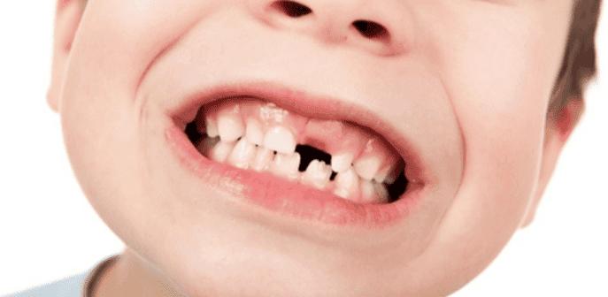 La aparición del primer diente en el bebé provoca una gran emoción para los padres y cuando continúa el brote de las piezas, no es raro escuchar palabras de papás y abuelos para alentar a los niños a tomar leche.