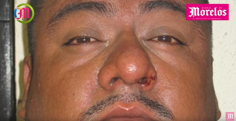 """Miguel alias """"El Chisto"""", muerto en Atlacholoaya, fue condenado a 40 años de cárcel"""