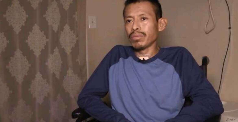 Fue al hospital por un simple resfriado y terminó sin las 2 piernas
