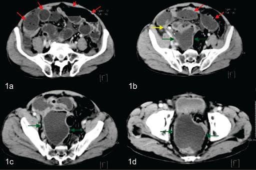 Tomografía permite diagnóstico más preciso en apendicitis