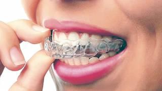 ¿Rechinas los dientes?, 80% sí 2
