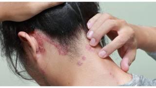 Cuidado: Confirman primer caso de lepra en Morelos 2