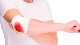 Hemofilia: cuando la sangre escapa 2