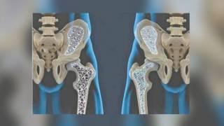 Con osteoporosis y no lo saben 2